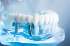 A-Z Dental